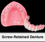 Screw Retained Implant Denture